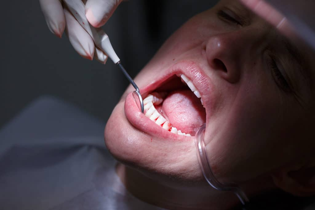 Gum Disease in Men – How it affects male health