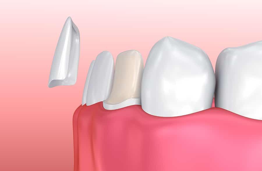 Dental Veneers – Porcelain Veneers, Procedure, costs, life and more