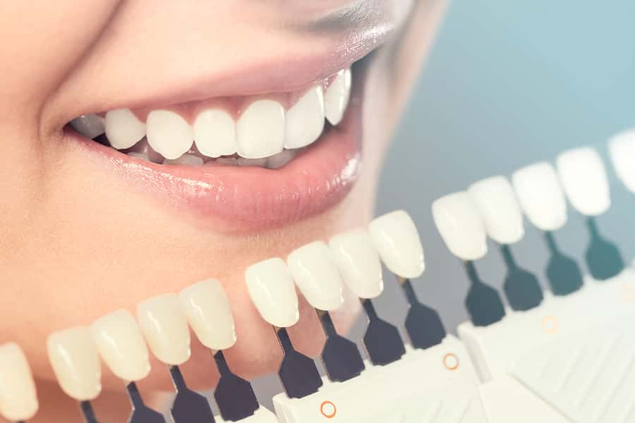 teeth whitening myths and facts you should know